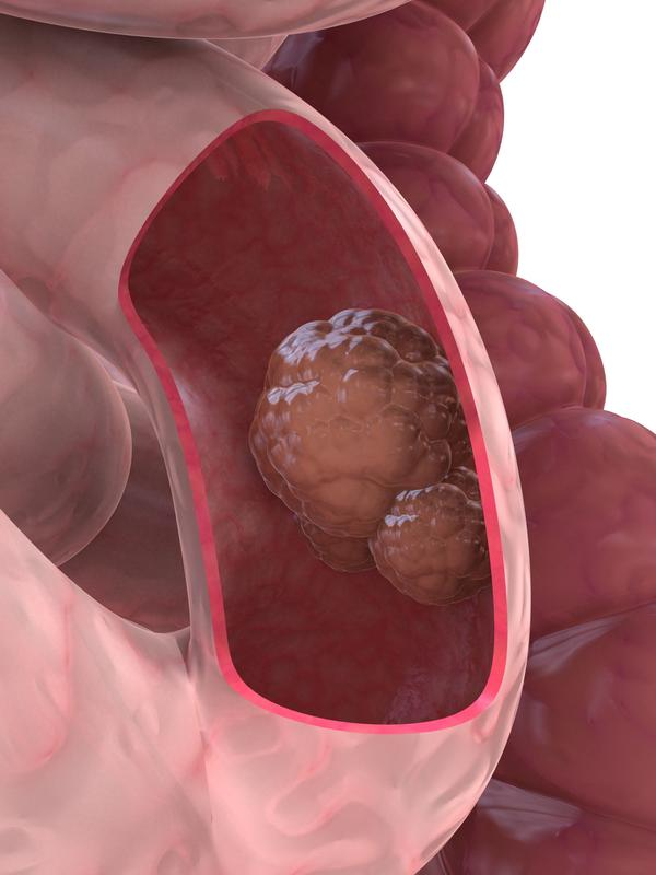 What are the tests for intestinal cancer?