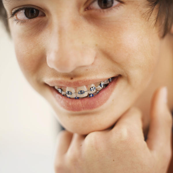 If you have crowded teeth willthat mean you need braces?