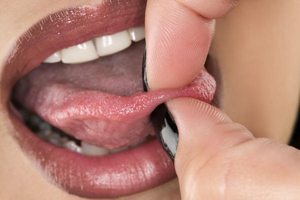 Moist inside cheeks, under tongue but top of tongue is constantly very dry (food sticks to it). Chewing xylitol gum doesn't help. Not Sjogrens. Cause?