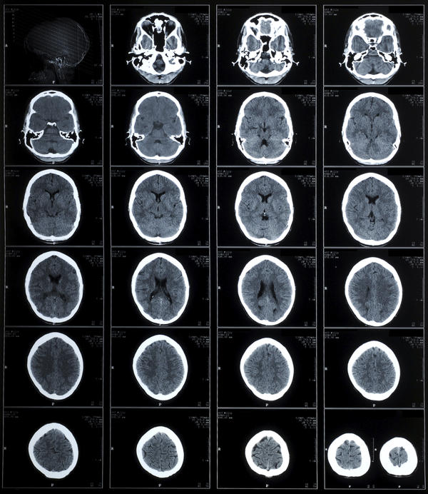 Odds of posterior epidural hematoma after hitting head on car approximately 11 hours out. No loss of conscienceless, or vomiting. Was lethargic though?