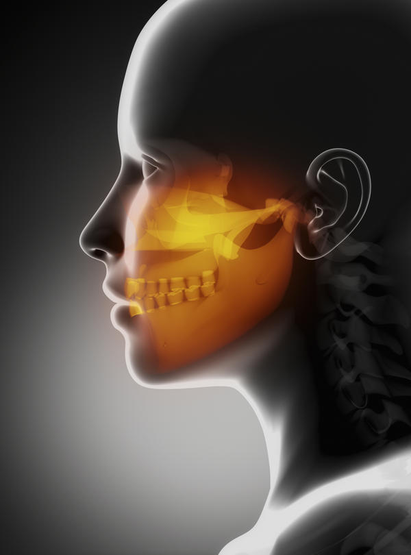 Can you have some fluid in your maxillary sinus without actually having an infection?