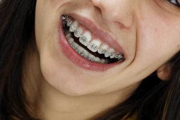 If you have crooked teeth what can you do to get it fix? Besides getting braces and invisalign