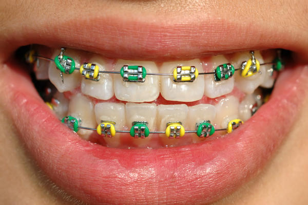 What to do if rubber bands don't correct a cross bite?
