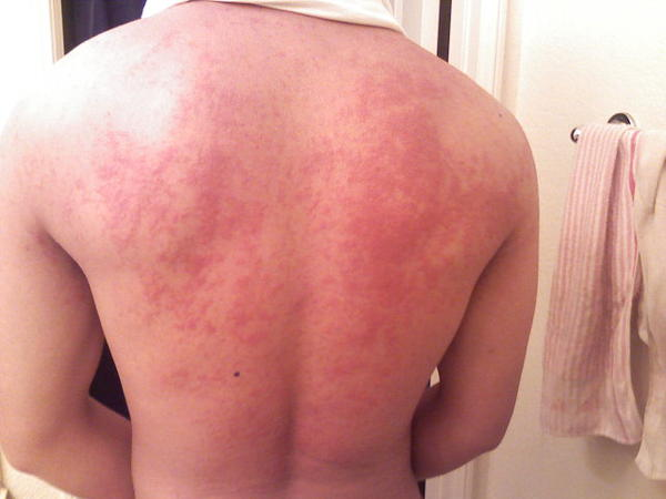 Hives all over my back/chest/face after i shower or have a bath for the last 10 years? Have tried multiple hypoallergenic soaps and shampoos, causes?