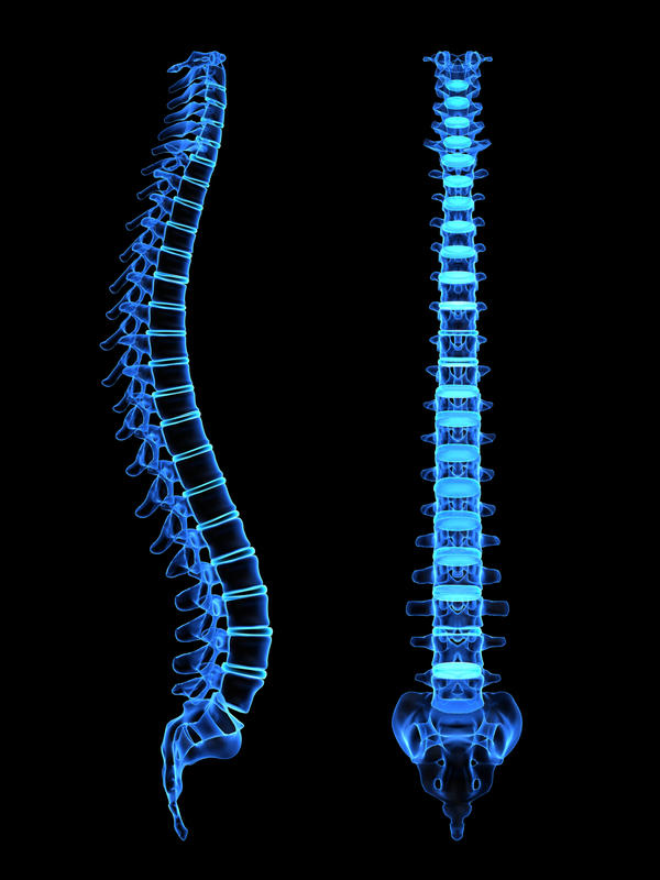 "What is the cause of ""idiopathic syringomyelia""?"