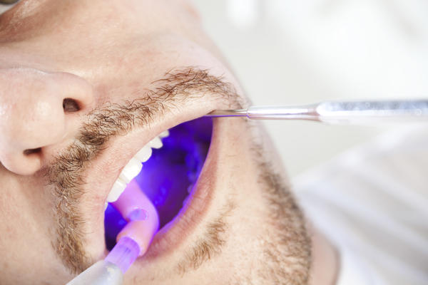 How common is it to have dental sealants on all of your teeth?