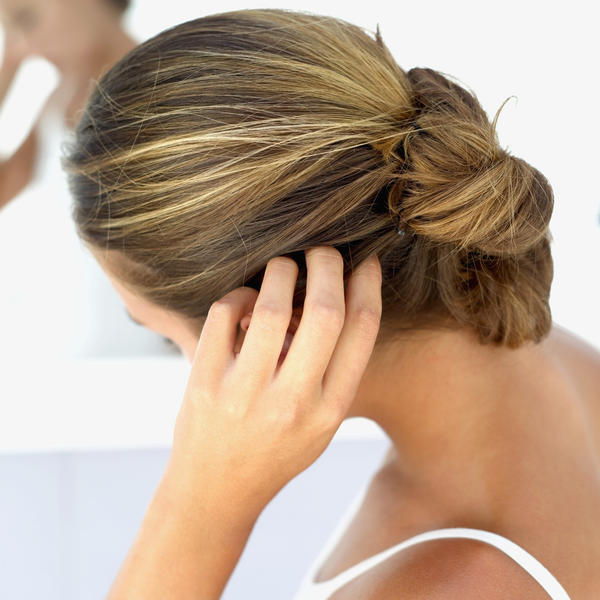 Is there a way to ease the itching caused by lice?