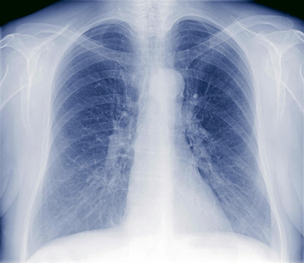 What causes you to get fluid on your lungs?