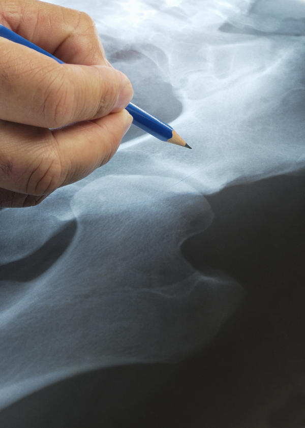 Hip osteotomy or hip replacement. Which is better?