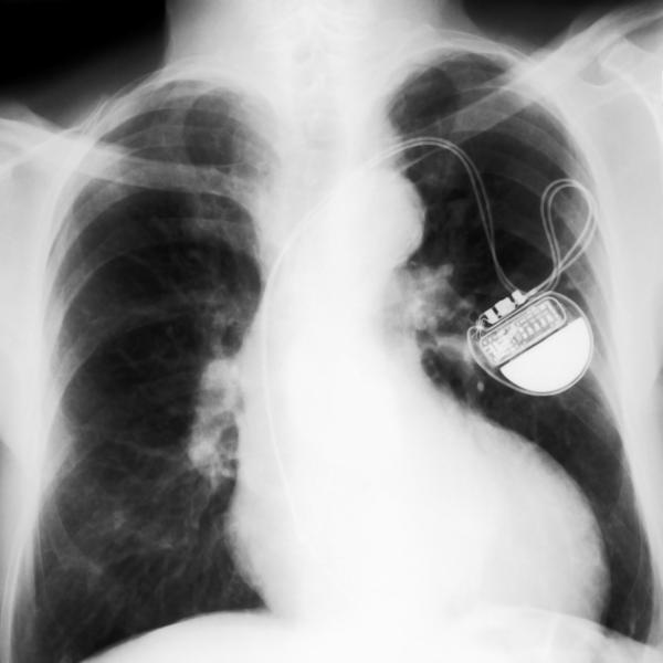 What are the main parts of a implantable cardioverter-defibrillator?
