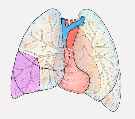 What is the cause of sudden breathlessness?