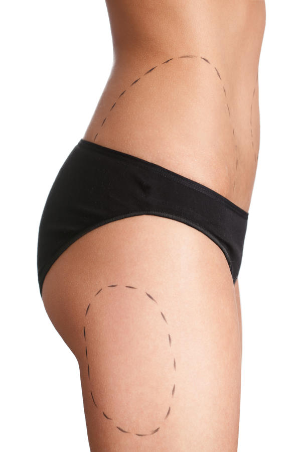 What are the advantages of a butt lift over butt implants? I am considering a butt augmentation but can't decide between a Brazilian butt lift and implants for the skin on my rear that is droopy. The Brazilian seems less invasive; are there any other adva