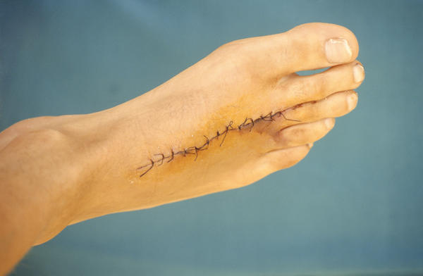 Does a granuloma caused by dissolvable sutures require surgical removal?