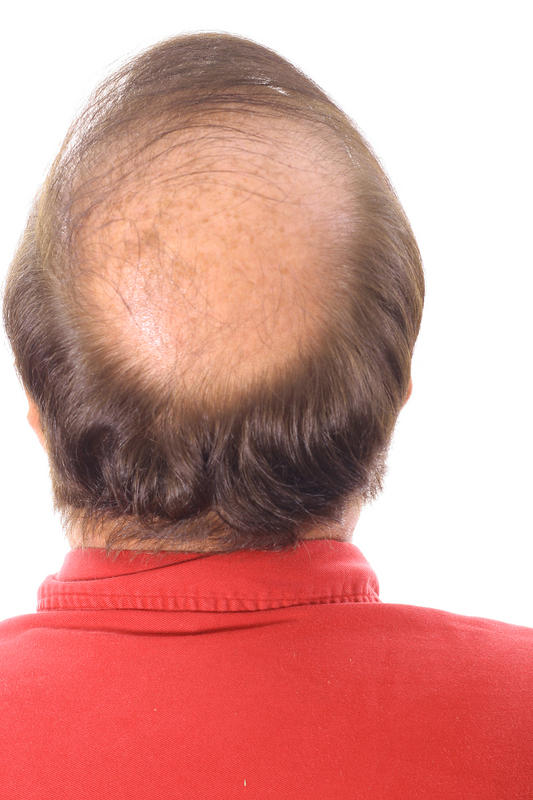 What vitamin deficiency, besides iron, can cause hair loss in a young woman?