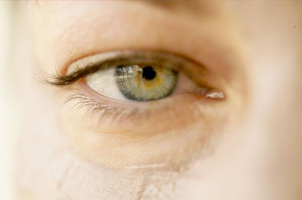 How can I treat severe dry eyes?