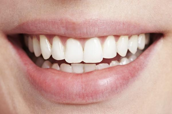 Can you tell me any teeth whitening products that actually work?