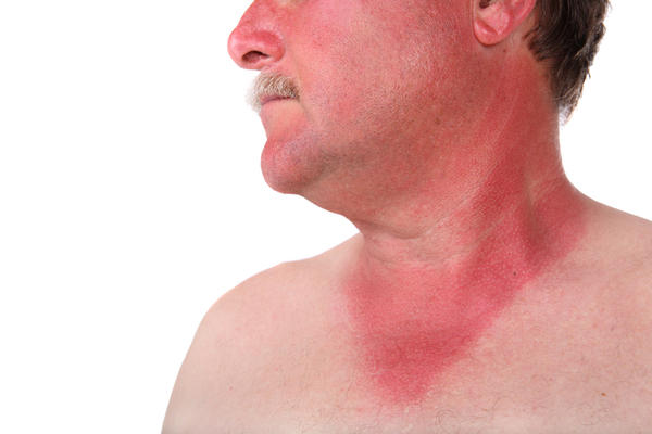 Can sunburn cause a swollen face?