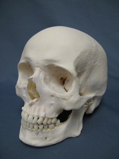 What can cause a thick skull?
