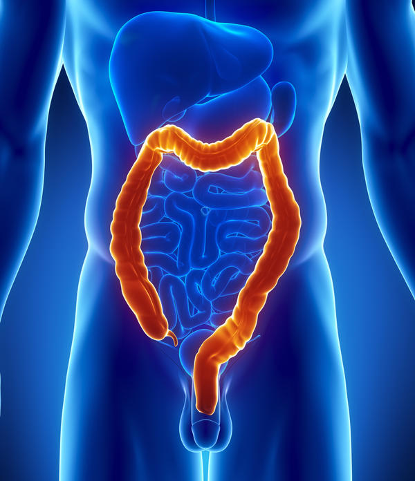 Do the polyps grow all over the colon in polyposis?