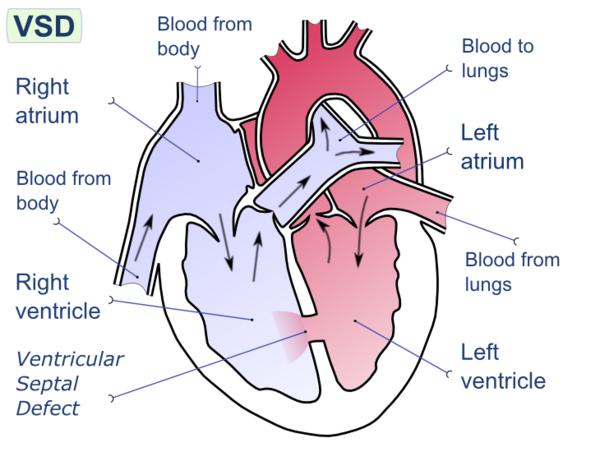 What symptoms are associated with a ventricular septal defect?
