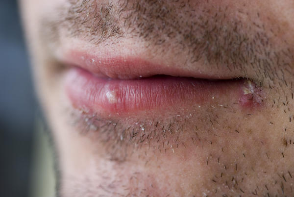 Cold sore or zit? Started as red bump in corner of lips, tried to pop like zit (no white head), crust formed, traces left 2 weeks later