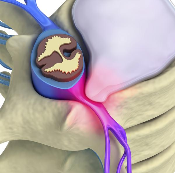 Could a herniated disc / bulging disk be affecting thecal sac?