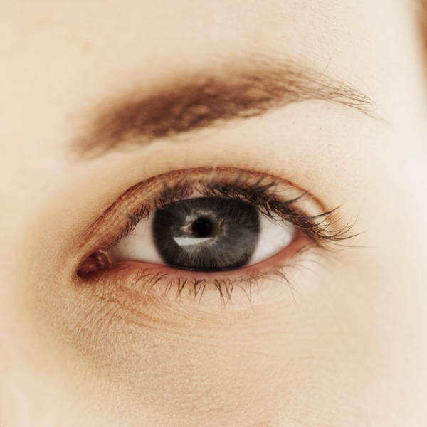 Are eye melanomas more common in the iris or the white part of the eye?