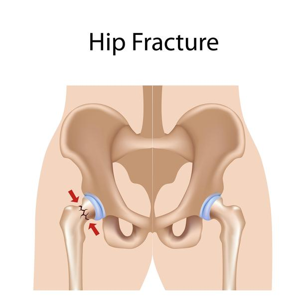 "How severe is a ""comminuted hip fracture""?"