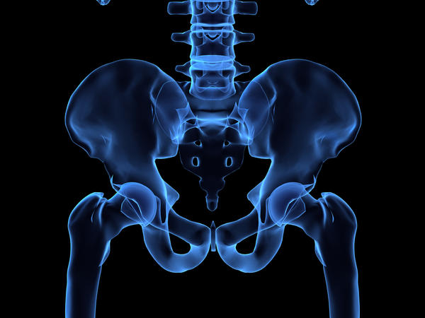 Can a strained arch cause hip pain?