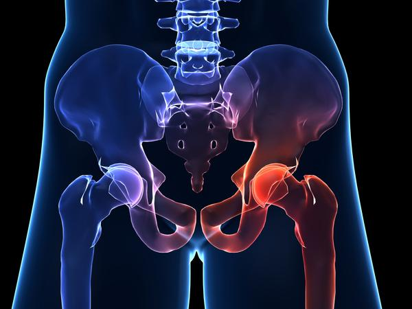 Are the symptoms of septic hip bad?