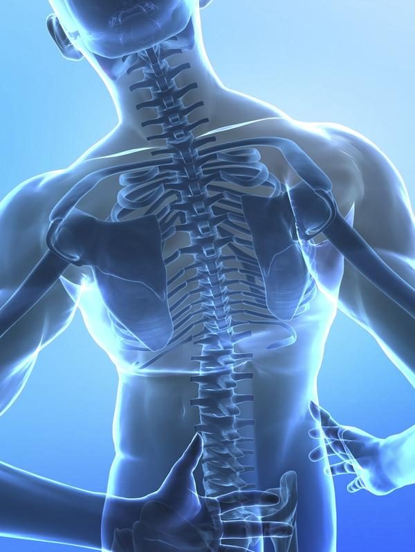 What are the signs and treatment options for a broken back?