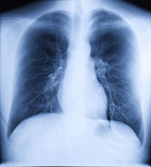 Is bronchiectasis the same as cf ?