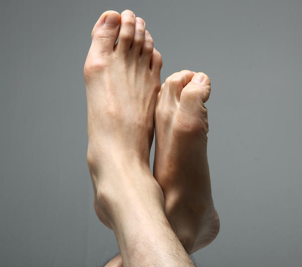 What can I do to get rid of bunions by the big toe?