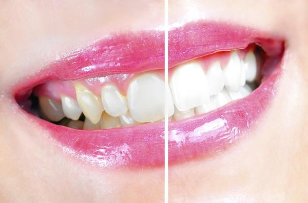 how to fix discolored teeth after braces