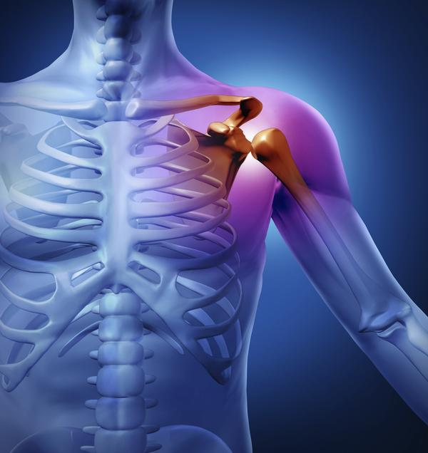 Can I go to the gym and workout with shoulder joint dislocation?