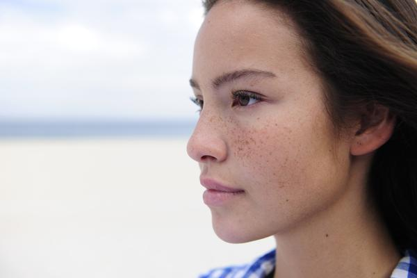 How do acne and pimples differ?