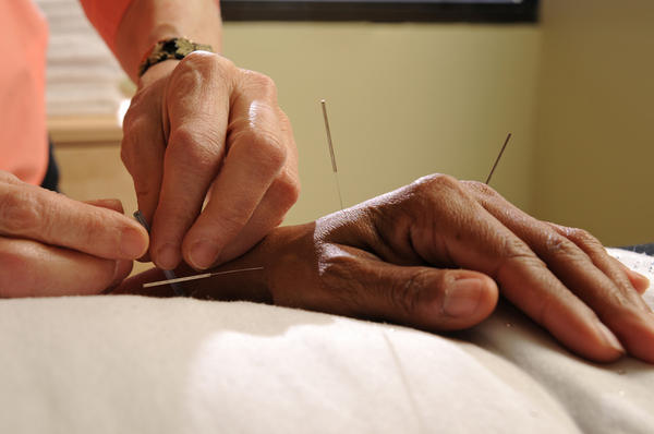 Where do they put needles for acupuncture for fertility treatments?