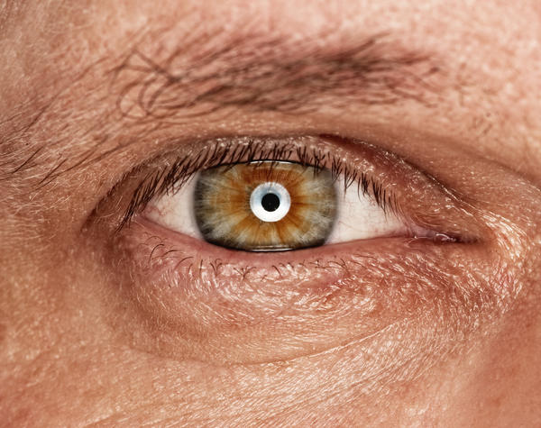 What are eye pain in one eye (throbbing) and a splitting headache?