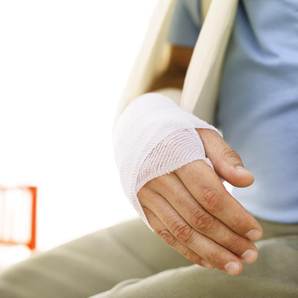 How to tell if you have a muscle sprain or hairline fracture in pinky finger?