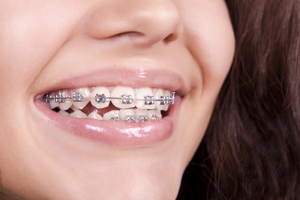 Does Invisilign move teeth slower than traditional braces?