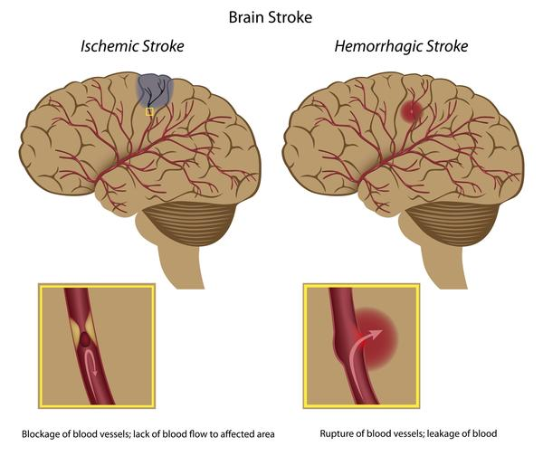 What's the difference between a cerebral vascular accident (stroke) & a transient ischaemic attack (tia)?