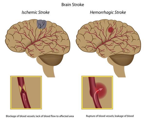 Stroke Caused by High Blood Pressure foto