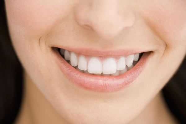 Could mild dental fluorosis be removed?