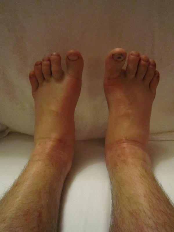 Edema legs feet ankles black/ blue sudden onset?