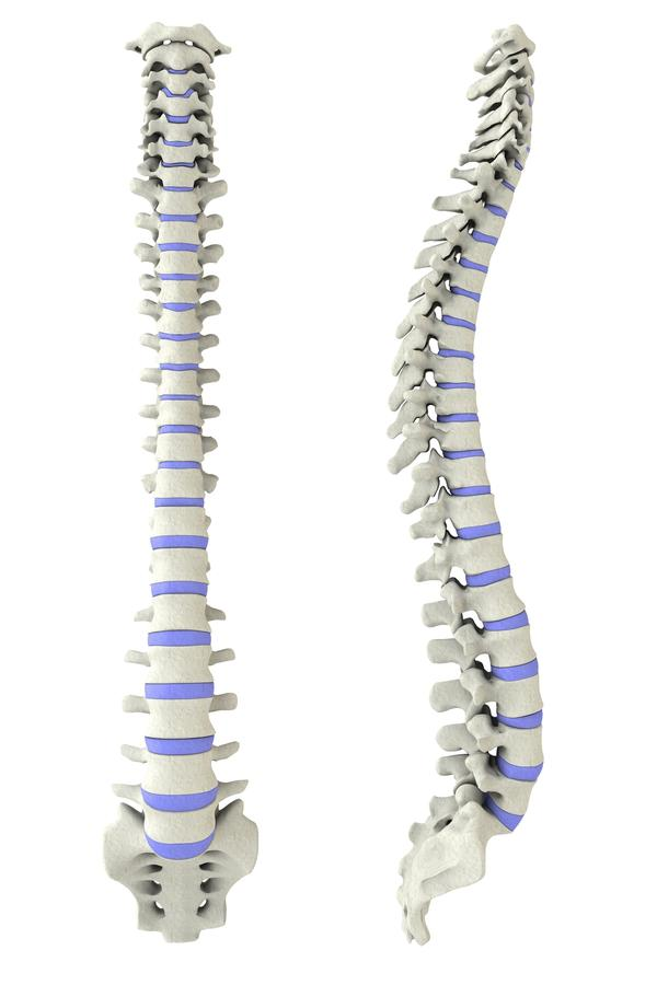 Suggestations for treatment of t and l-spine bulging discs, moderate to sever pain in t-spine for over a year, mild to no pain in l-spine?