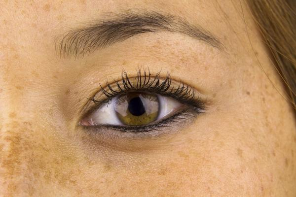 What causes irritation in eyelashes?