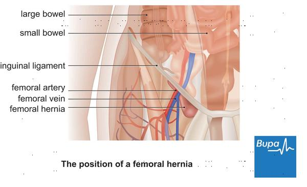 What is the cure for an abdominal hernia?