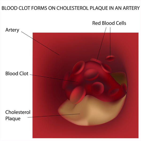 Period Blood Clots Pictures Your menstrual blood will