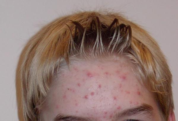 What is the clear liquid released from pimples?