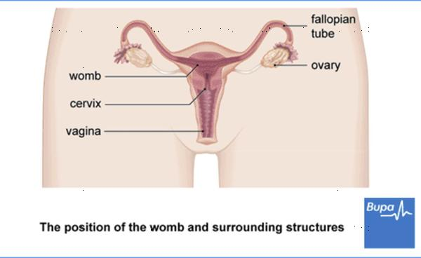Hysterectomy for retroverted uterus, how does this work?